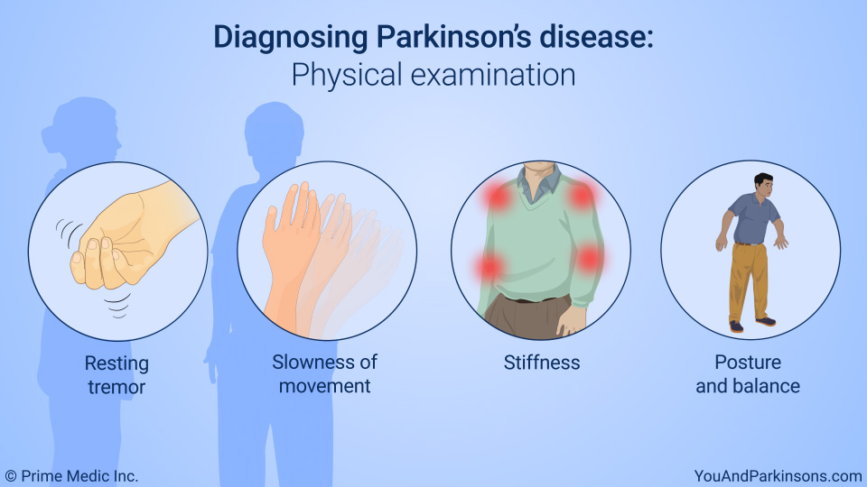 Diagnosing Parkinson's disease: Physical examination