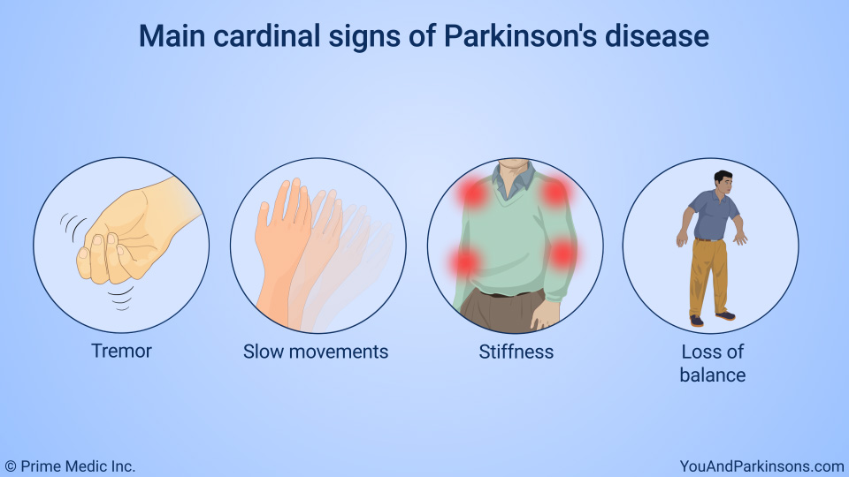 Main cardinal signs of Parkinson's disease