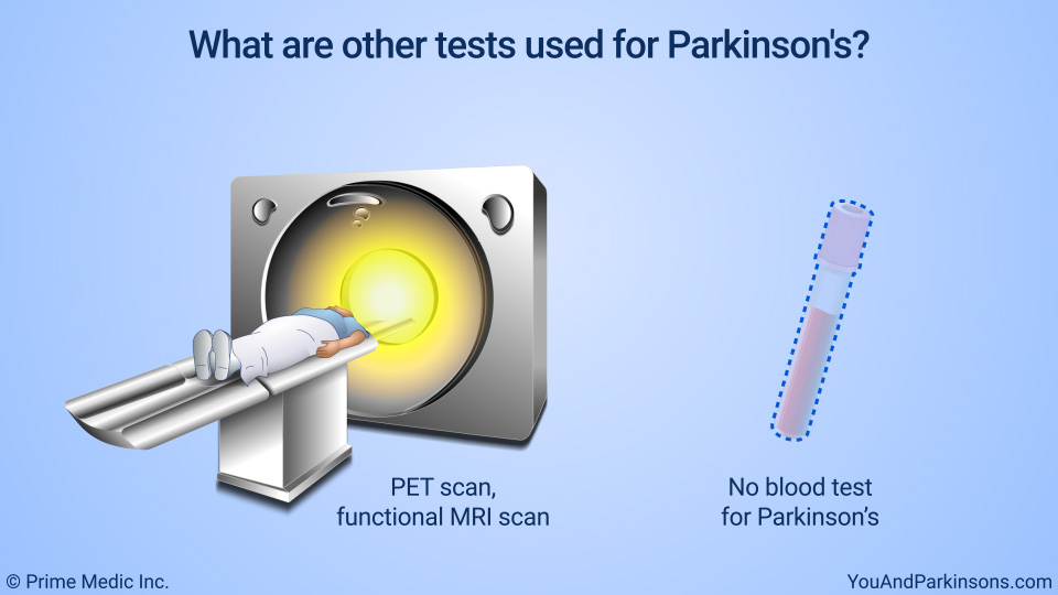 What are other tests used for Parkinson's?