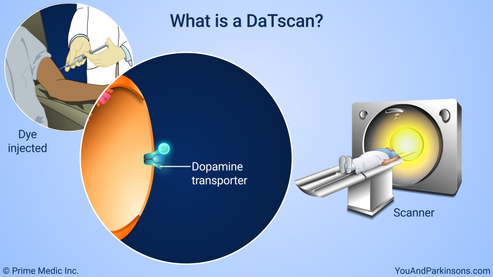 What is a DaTscan?