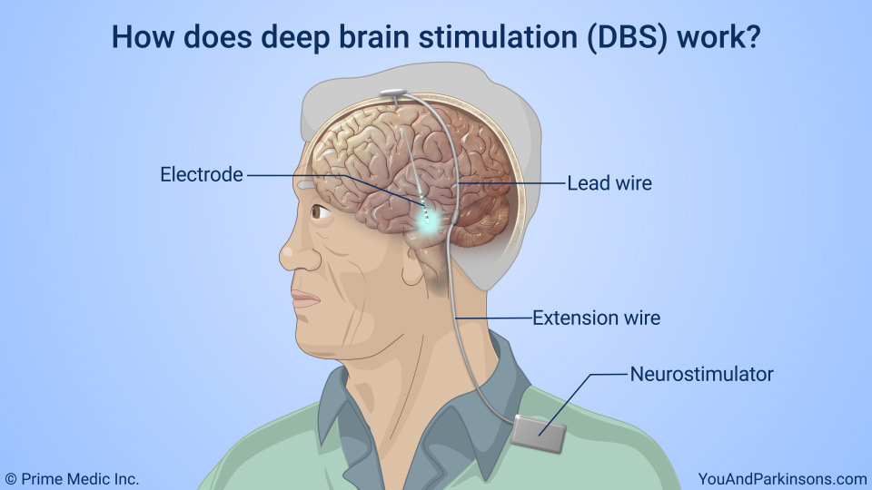 How does deep brain stimulation (DBS) work?