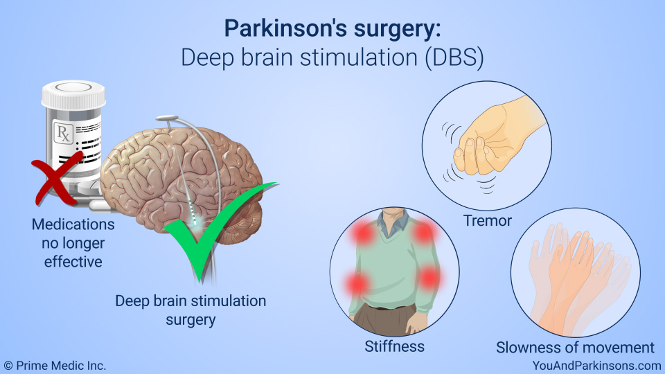 Parkinson's surgery: Deep brain stimulation (DBS)