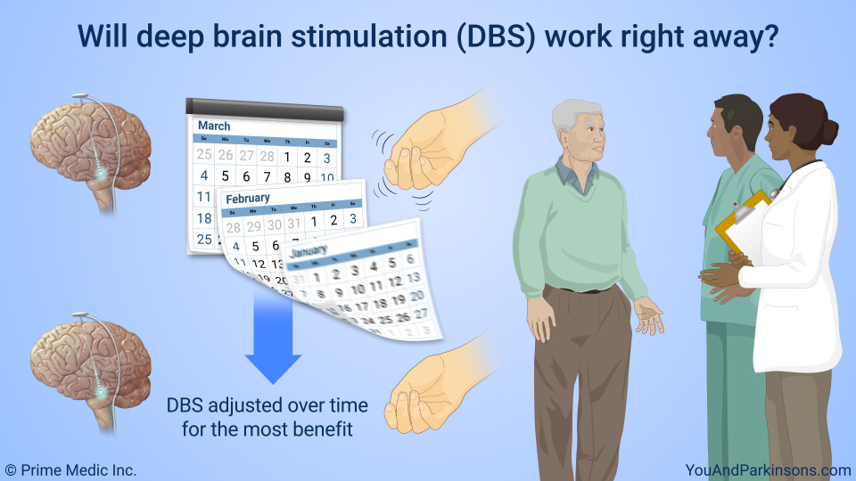 Will deep brain stimulation (DBS) work right away?