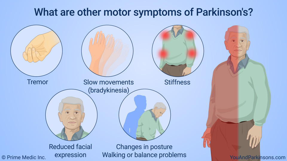 What are other motor symptoms of Parkinson's?
