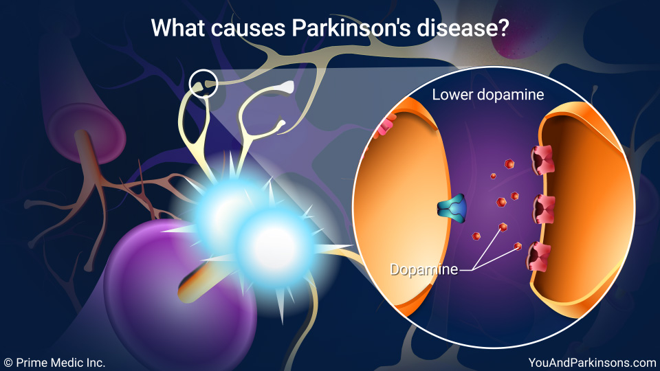 What causes Parkinson's disease?