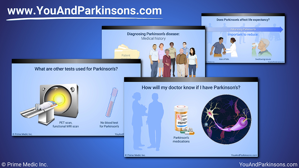 Slide Show - Diagnosis of Parkinson's Disease
