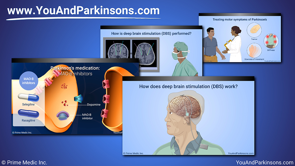 Slide Show - Treatment and Management of Parkinson's Disease